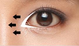 การผ่าเปิดหัวตาทำกันอย่างไรล่ะ?