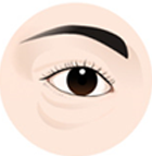 dark eye circleh1