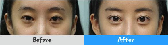 eye01f1