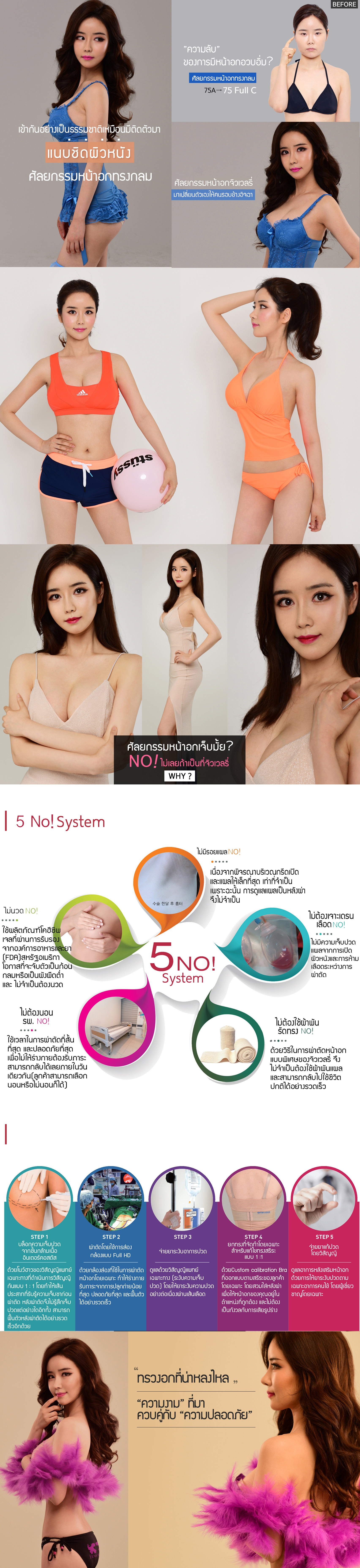 HPbreast-surgery1